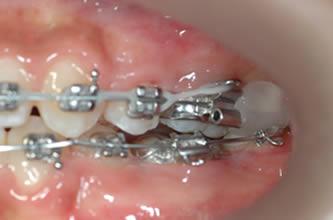Cas d'urgence au Cabinet d'orthodontie exclusive du Dr. FAVALI à Dax